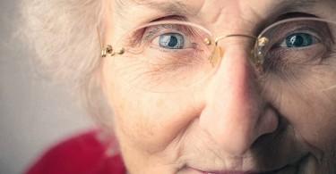 elderly woman - sarcopenia